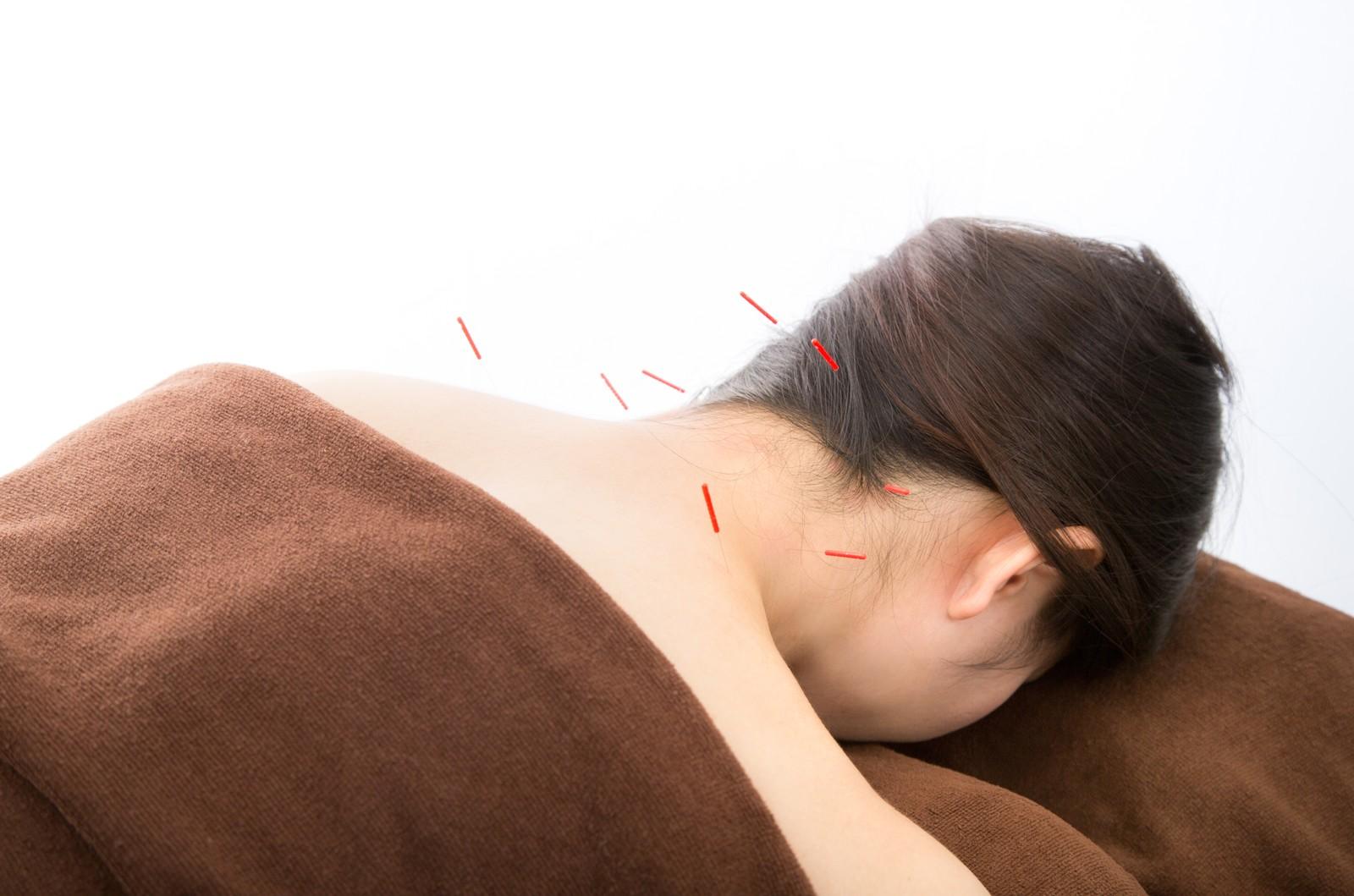 肩への鍼治療