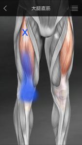 大腿直筋トリガーポイント膝痛