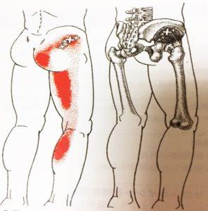 坐骨神経痛原因トリガーポイント
