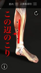 膝痛の原因 トリガーポイント