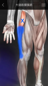 大腿筋膜張筋 トリガーポイント膝痛