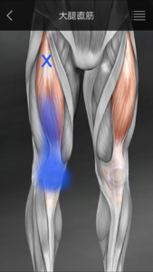 大腿直筋 膝痛トリガーポイント