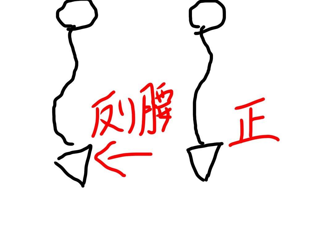 反り腰イメージ画像