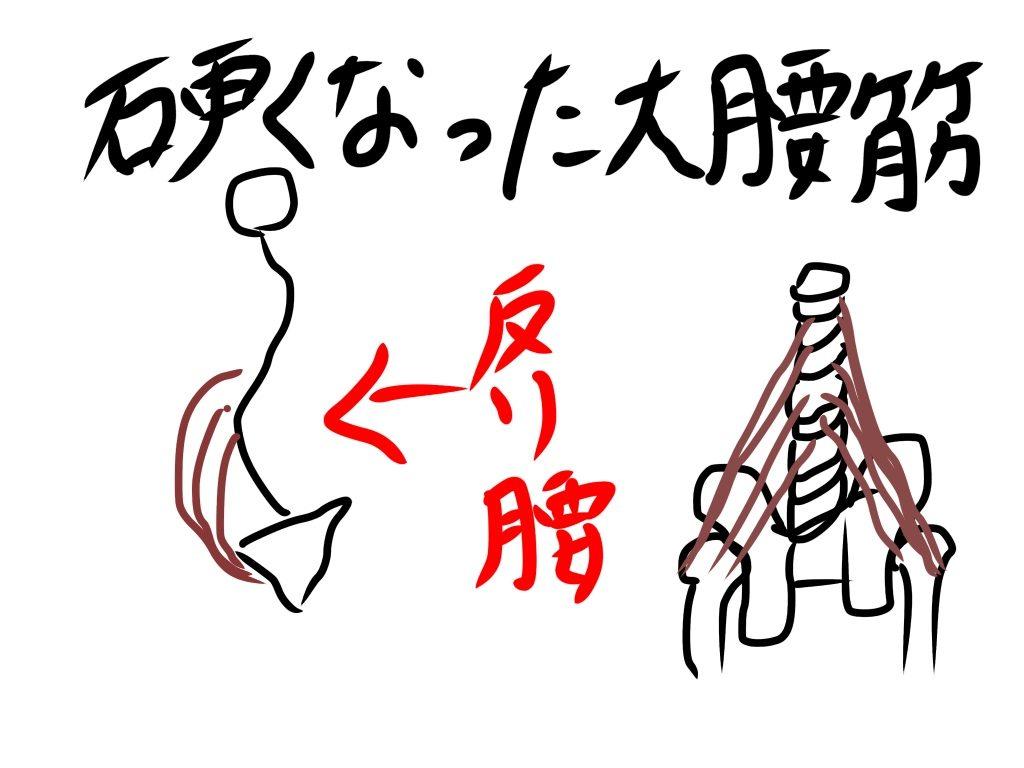 硬い大腰筋イラスト