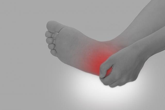 足底筋膜炎の様子