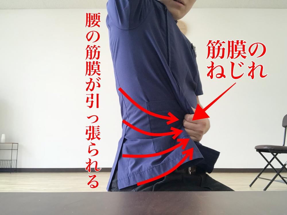 大腰筋筋膜リリース
