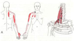 斜角筋トリガーポイント背中の痛み