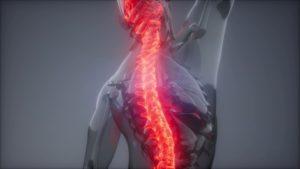 背中の痛み イラスト