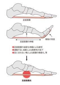 足底筋膜炎イラスト