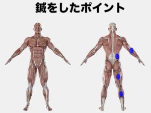 腰とお尻の痛みの刺鍼点