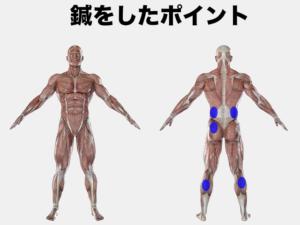 尾骨が痛い場合の刺鍼点