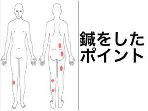 ふくらはぎの痛みがある坐骨神経痛の針するところ