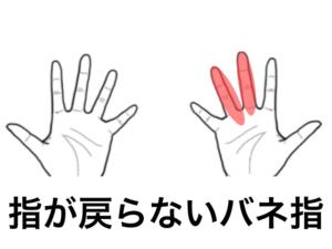 指が戻らないバネ指