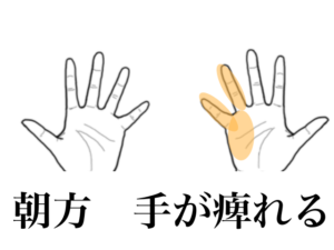 小指の痺れ