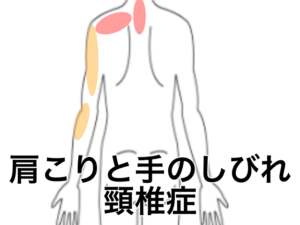頸椎症の痛むポイント