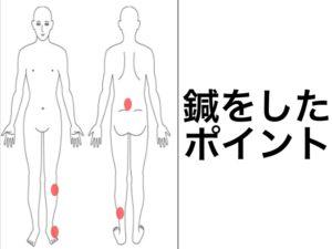股関節痛全面の痛み