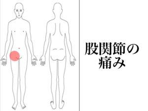 妊娠中股関節痛