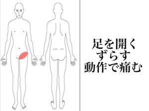 股関節を開くと痛む