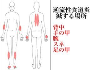 逆流性食道炎