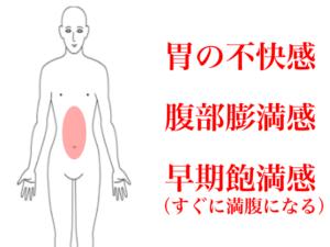 逆流性食道炎の症状